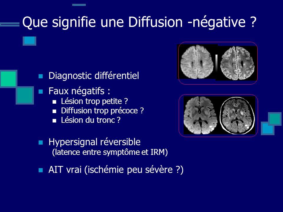 Que signifie une Diffusion -négative