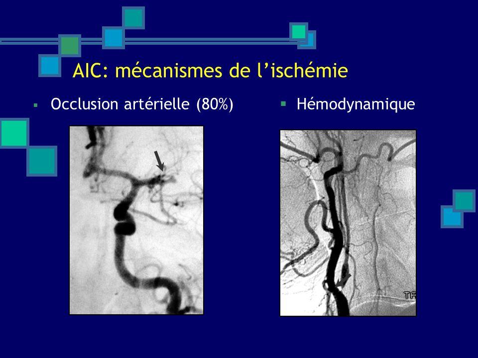 AIC: mécanismes de l'ischémie