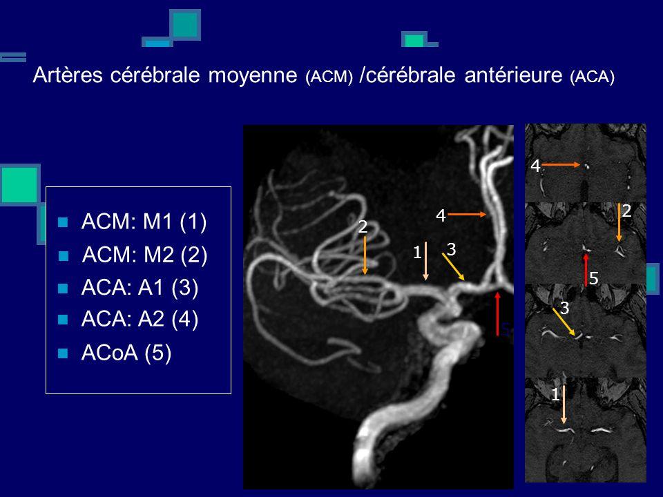 Artères cérébrale moyenne (ACM) /cérébrale antérieure (ACA)