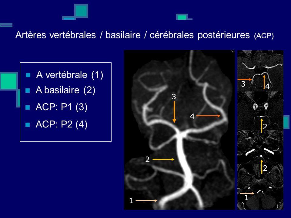 Artères vertébrales / basilaire / cérébrales postérieures (ACP)