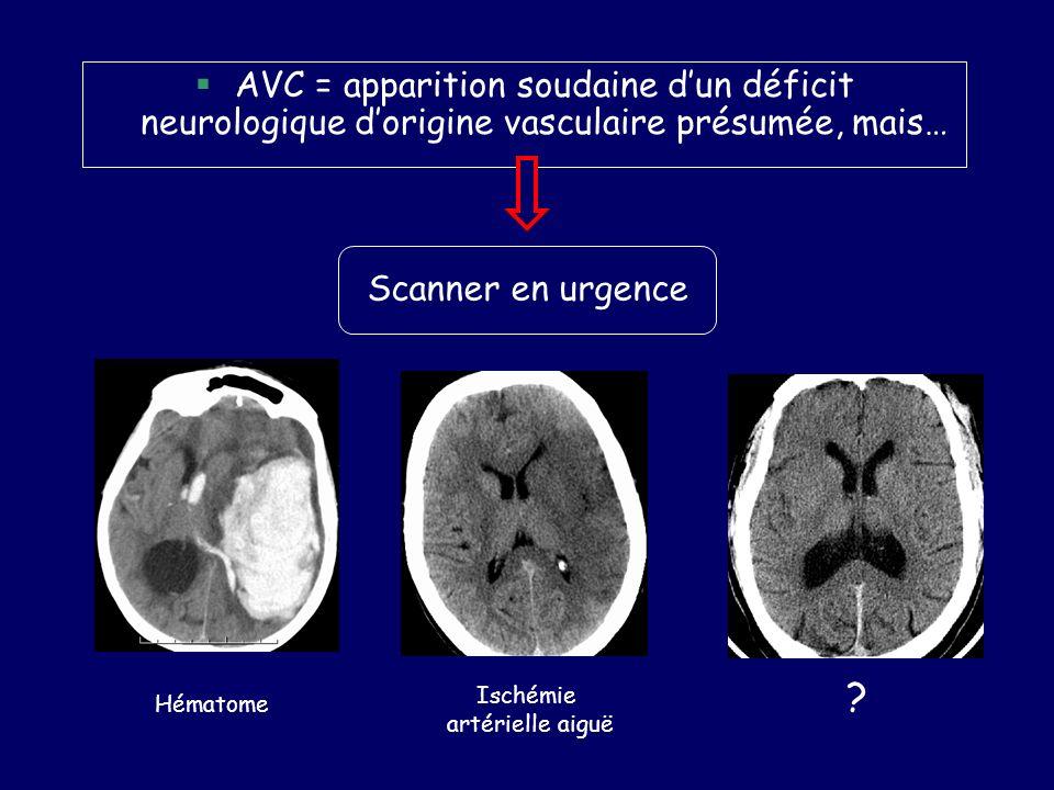 AVC = apparition soudaine d'un déficit neurologique d'origine vasculaire présumée, mais…