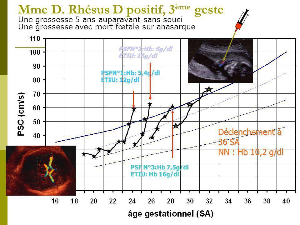 Mme D. Rhésus D positif, 3ème geste Une grossesse 5 ans auparavant sans souci Une grossesse avec mort fœtale sur anasarque