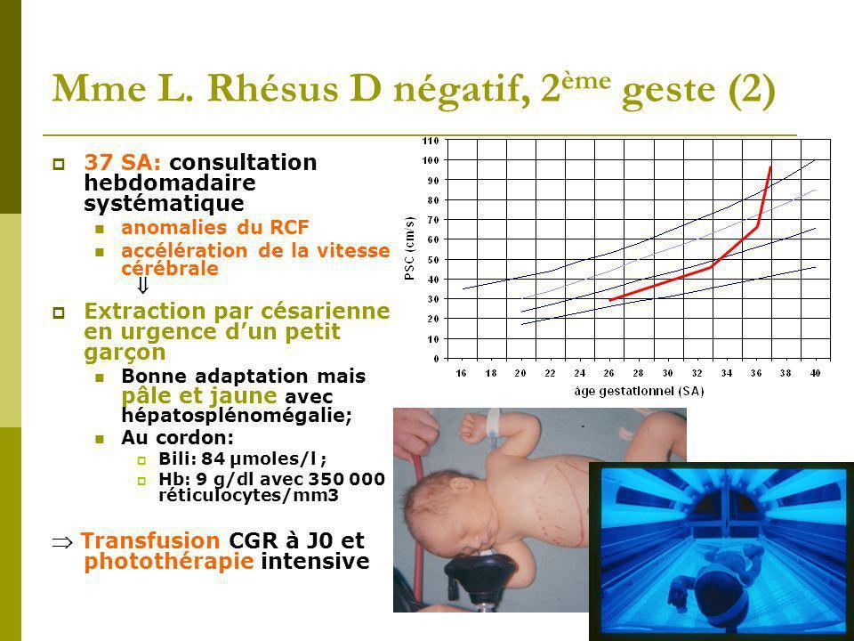 Mme L. Rhésus D négatif, 2ème geste (2)