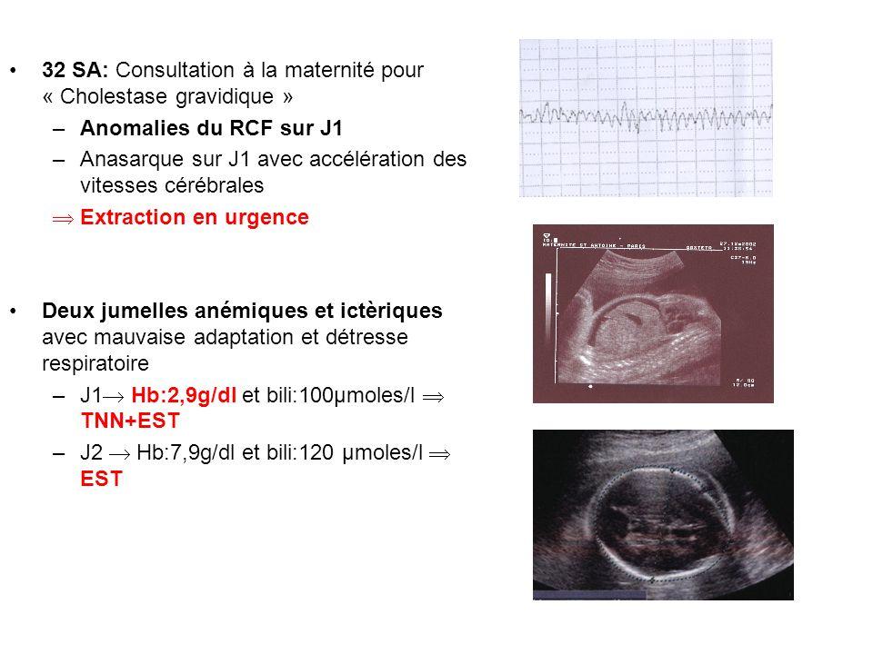 32 SA: Consultation à la maternité pour « Cholestase gravidique »