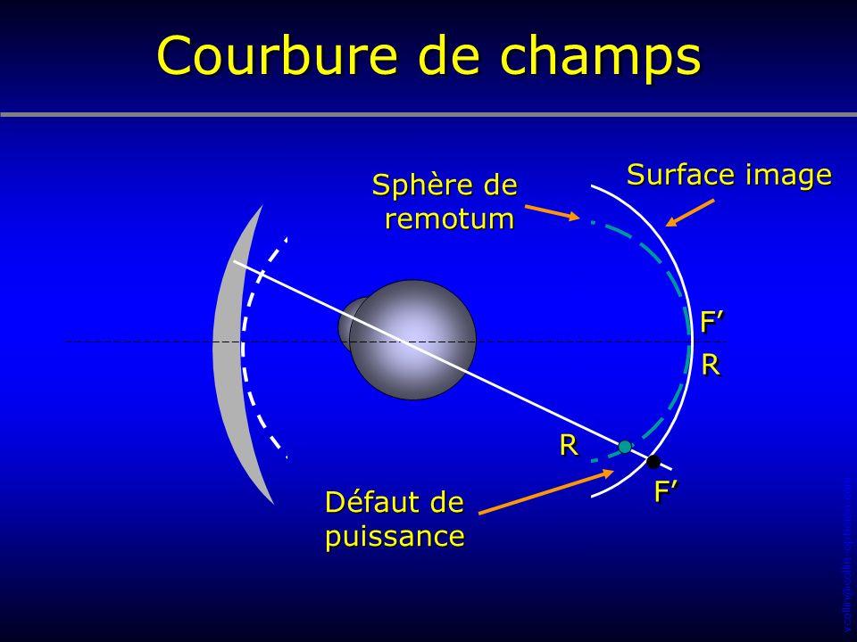 Courbure de champs Surface image Sphère de remotum F' R R F' Défaut de