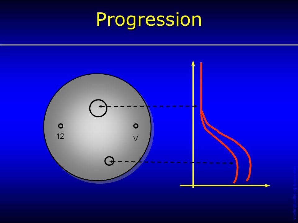 Progression 12. V. Une surface progressive est une surface asphérique dont la puissance optique varie :