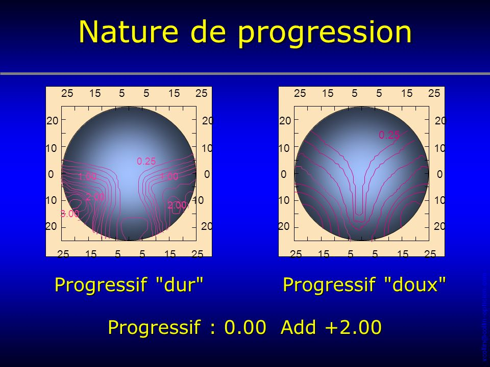 Nature de progression Progressif dur Progressif doux