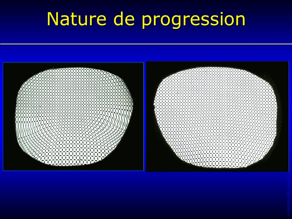 Nature de progression