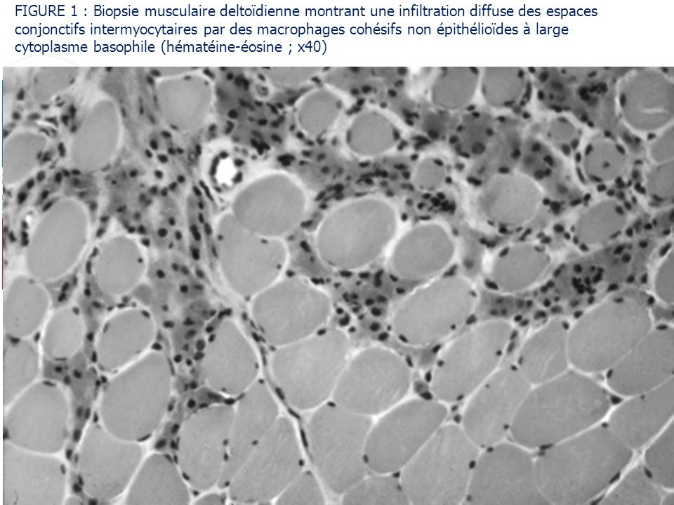 FIGURE 1 : Biopsie musculaire deltoïdienne montrant une infiltration diffuse des espaces conjonctifs intermyocytaires par des macrophages cohésifs non épithélioïdes à large cytoplasme basophile (hématéine-éosine ; x40)