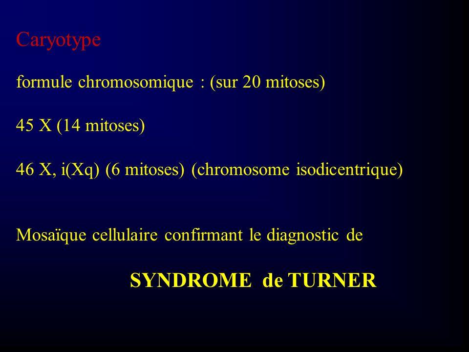 Caryotype formule chromosomique : (sur 20 mitoses) 45 X (14 mitoses)