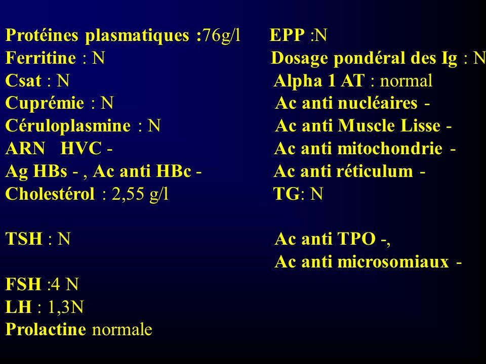 Protéines plasmatiques :76g/l EPP :N
