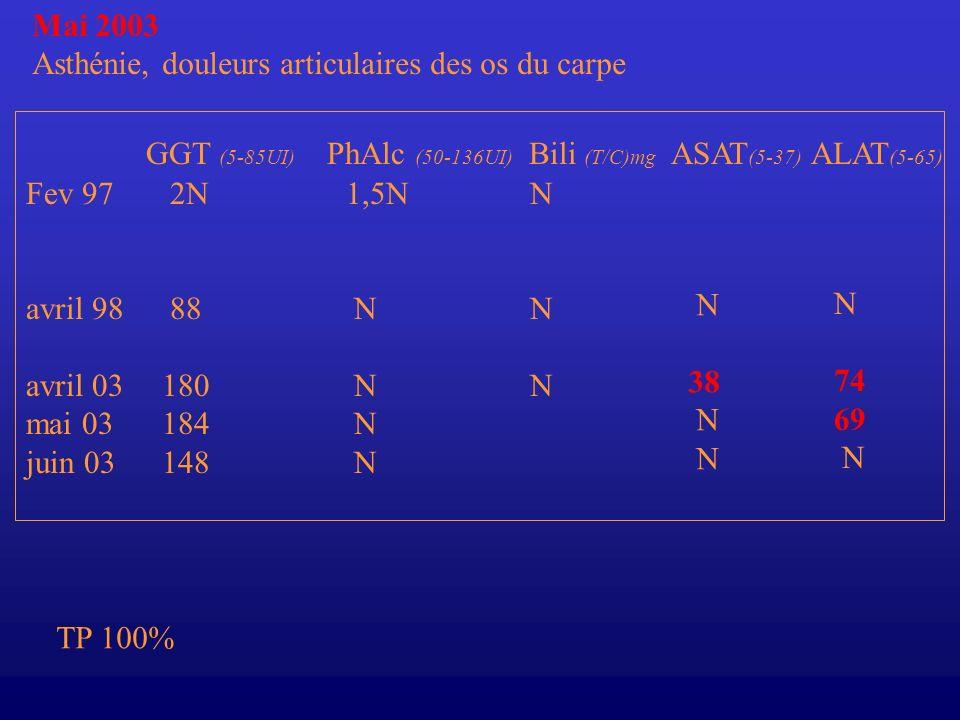 Mai 2003 Asthénie, douleurs articulaires des os du carpe. GGT (5-85UI) PhAlc (50-136UI) Bili (T/C)mg ASAT(5-37) ALAT(5-65)