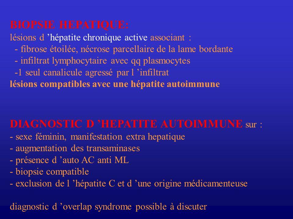 DIAGNOSTIC D 'HEPATITE AUTOIMMUNE sur :