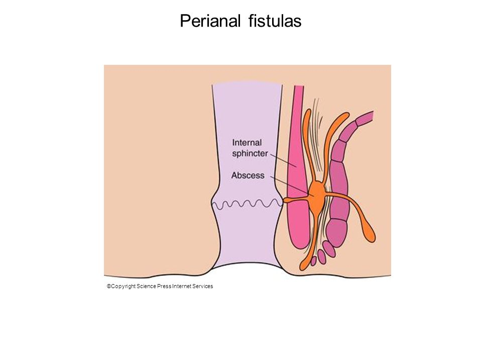 Perianal fistulas Perianal fistulas. A, Perianal lesions occur in as many as one third of all.