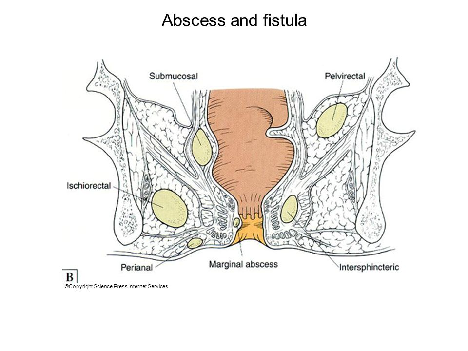 Abscess and fistula Abscess is the acute manifestation and fistula is the chronic manifestation of.