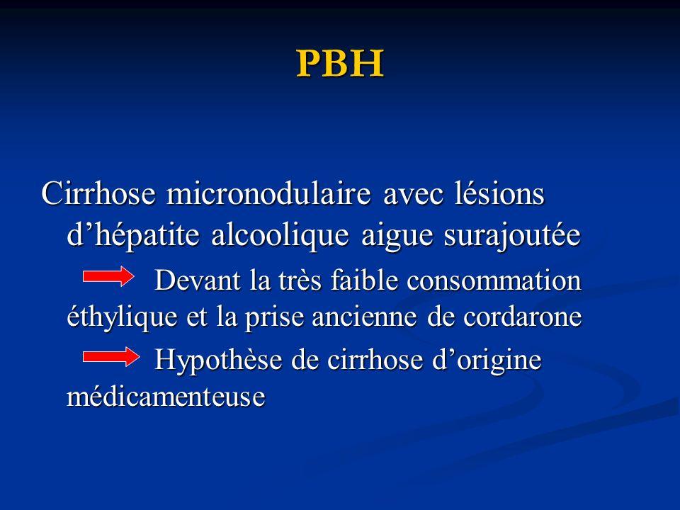 PBH Cirrhose micronodulaire avec lésions d'hépatite alcoolique aigue surajoutée.