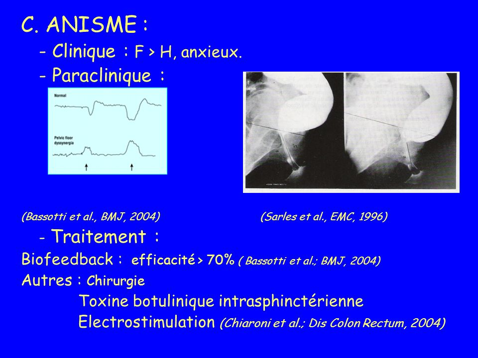 C. ANISME : - Clinique : F > H, anxieux. - Paraclinique :