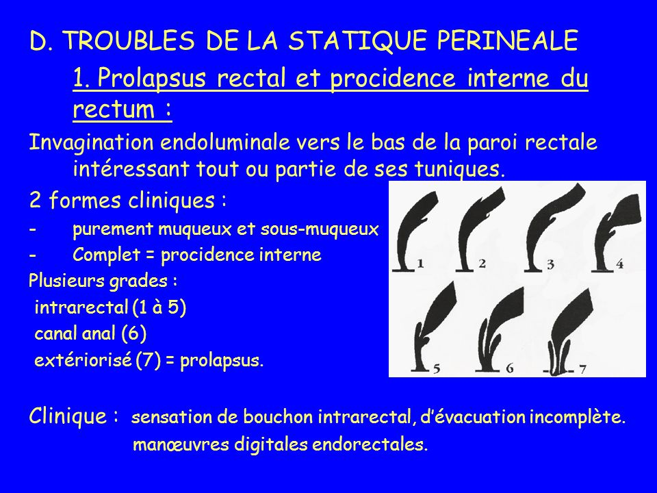 D. TROUBLES DE LA STATIQUE PERINEALE