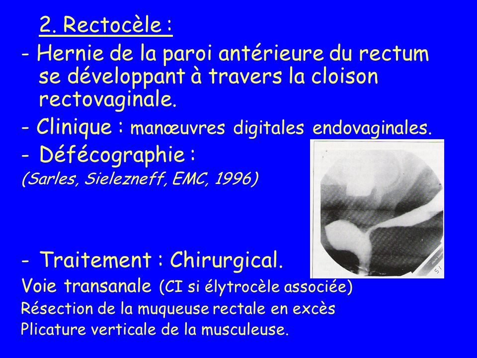 - Clinique : manœuvres digitales endovaginales. Défécographie :