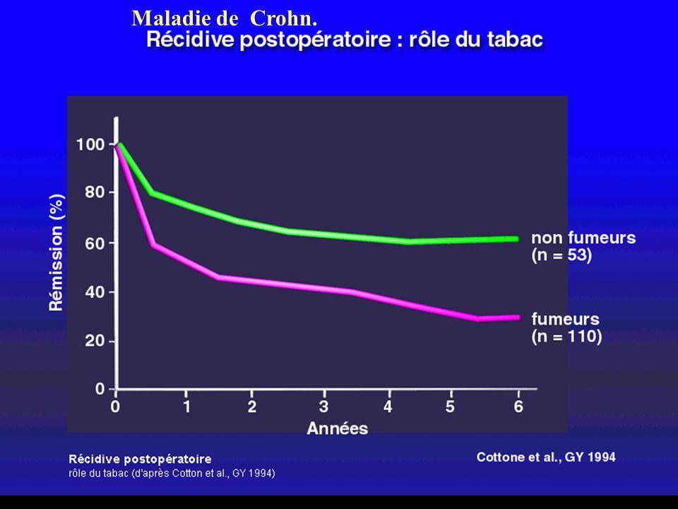 Maladie de Crohn.