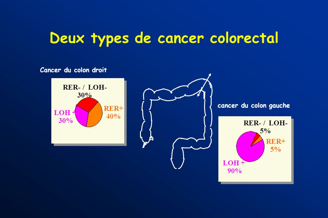 Deux types de cancer colorectal