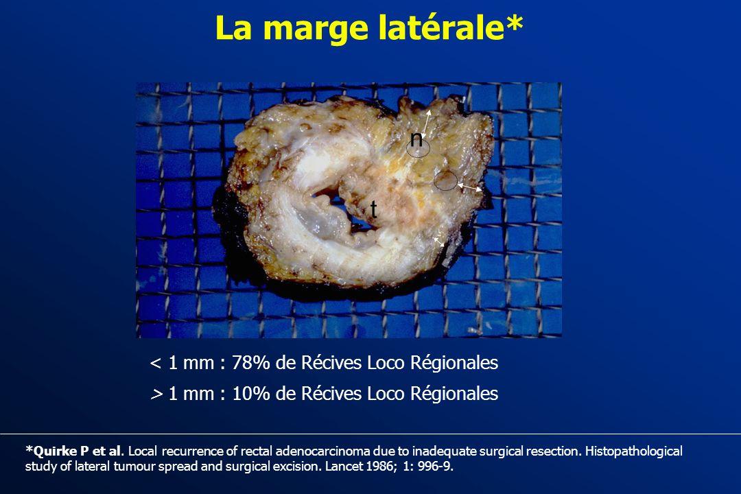 La marge latérale* n t < 1 mm : 78% de Récives Loco Régionales