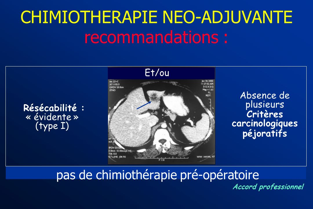 CHIMIOTHERAPIE NEO-ADJUVANTE recommandations :