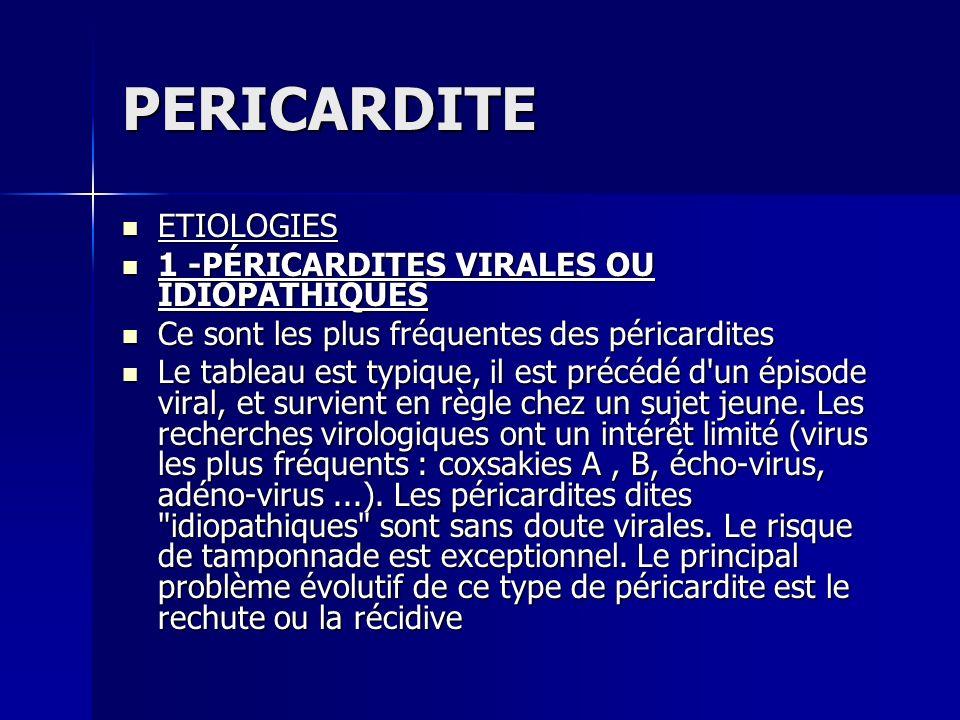 PERICARDITE ETIOLOGIES 1 -PÉRICARDITES VIRALES OU IDIOPATHIQUES
