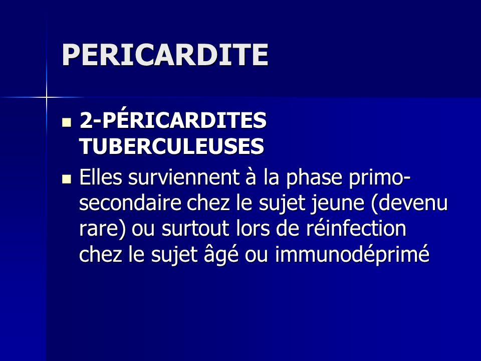 PERICARDITE 2-PÉRICARDITES TUBERCULEUSES
