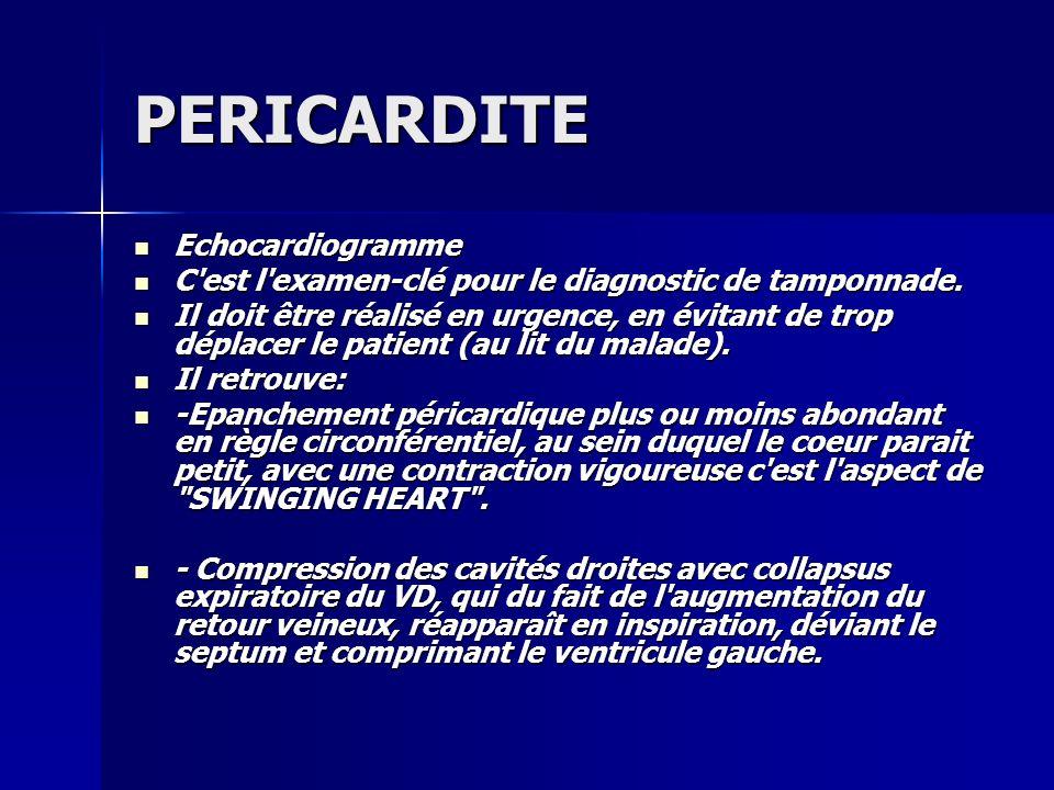 PERICARDITE Echocardiogramme
