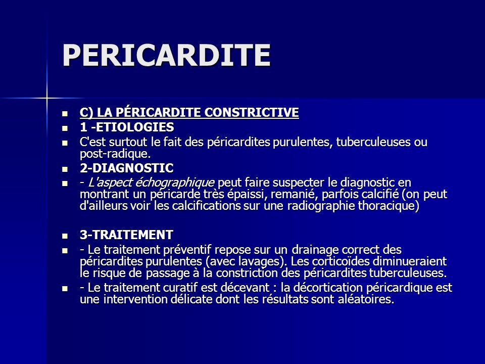PERICARDITE C) LA PÉRICARDITE CONSTRICTIVE 1 -ETIOLOGIES