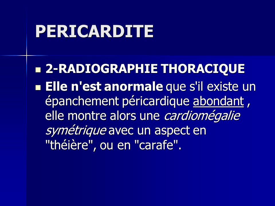 PERICARDITE 2-RADIOGRAPHIE THORACIQUE