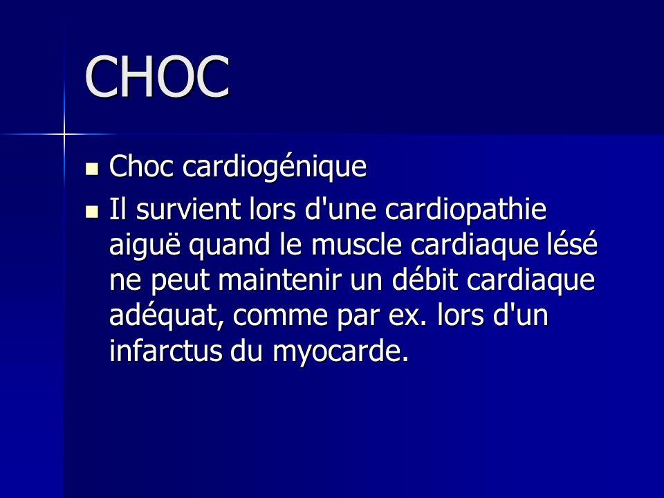 CHOC Choc cardiogénique