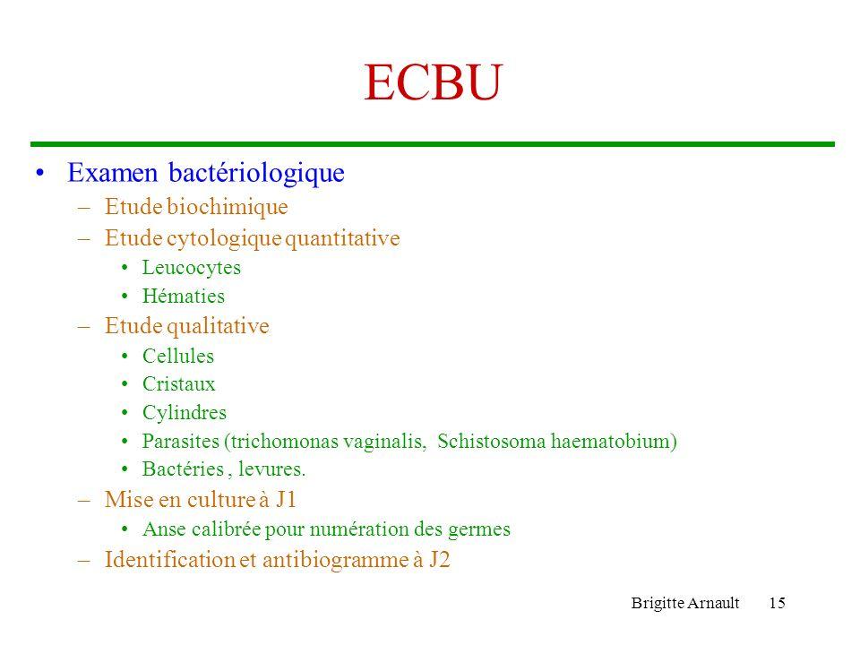 ECBU Examen bactériologique Etude biochimique