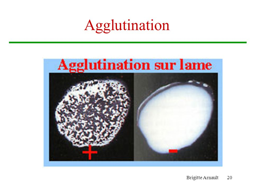 Agglutination Brigitte Arnault