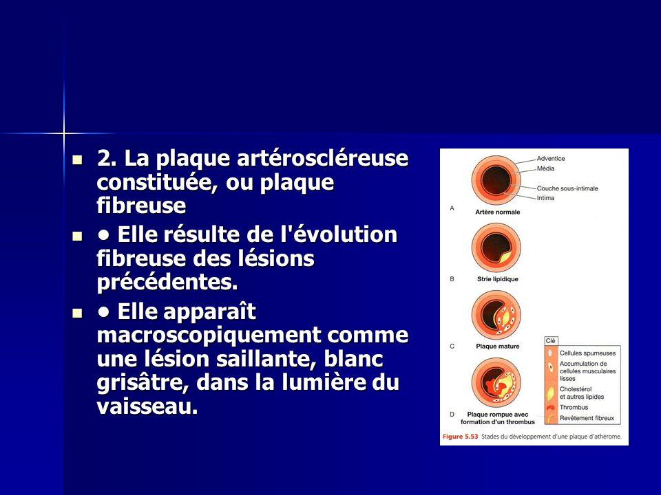 2. La plaque artéroscléreuse constituée, ou plaque fibreuse