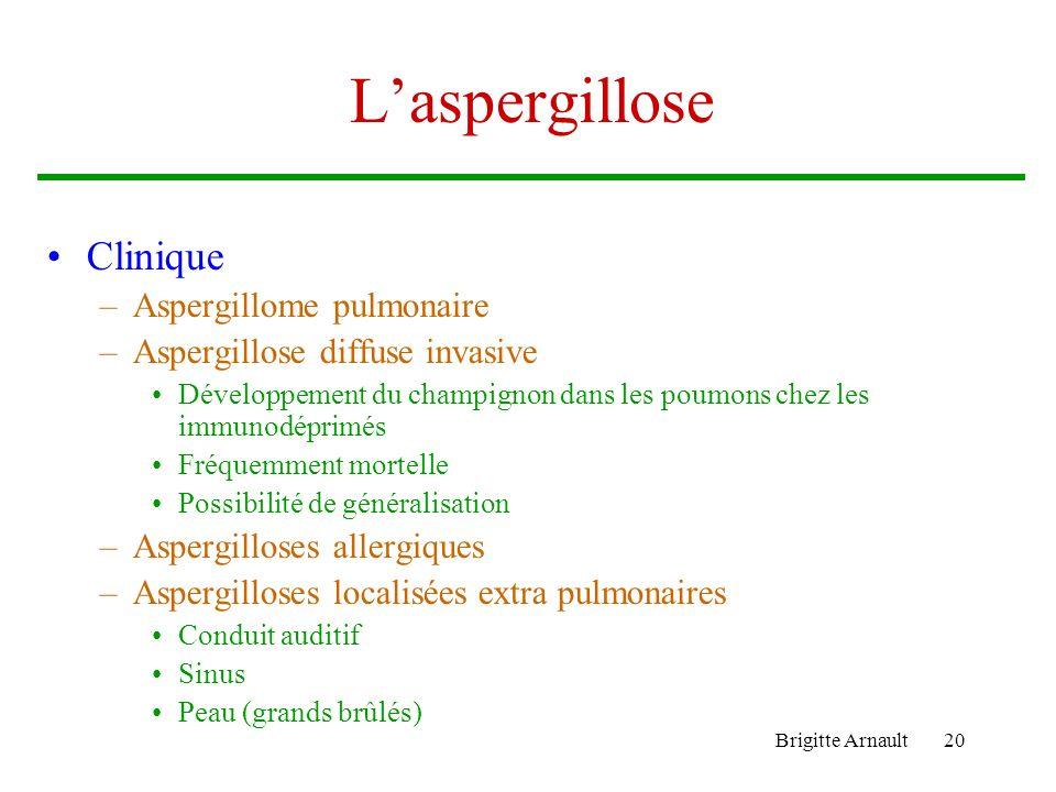 L'aspergillose Clinique Aspergillome pulmonaire
