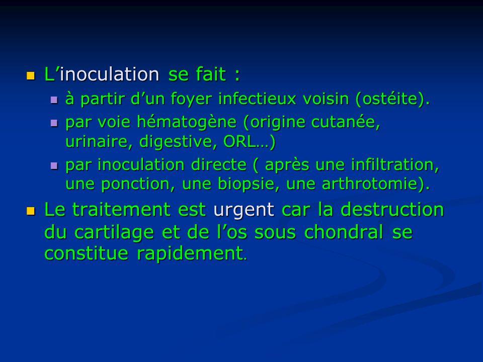 L'inoculation se fait :