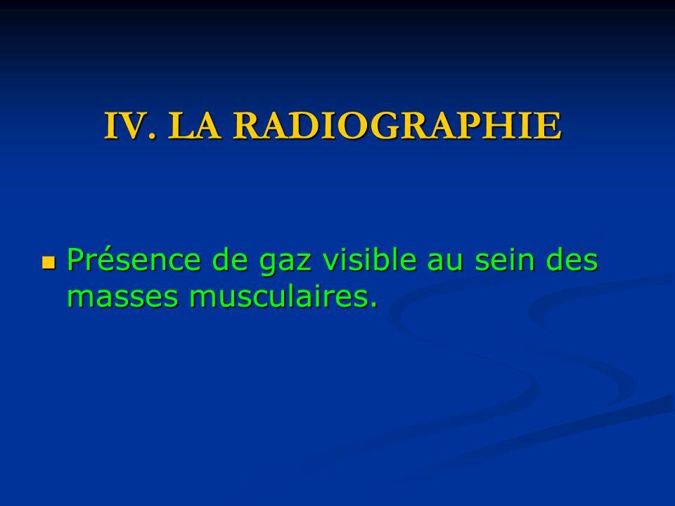 IV. LA RADIOGRAPHIE Présence de gaz visible au sein des masses musculaires.