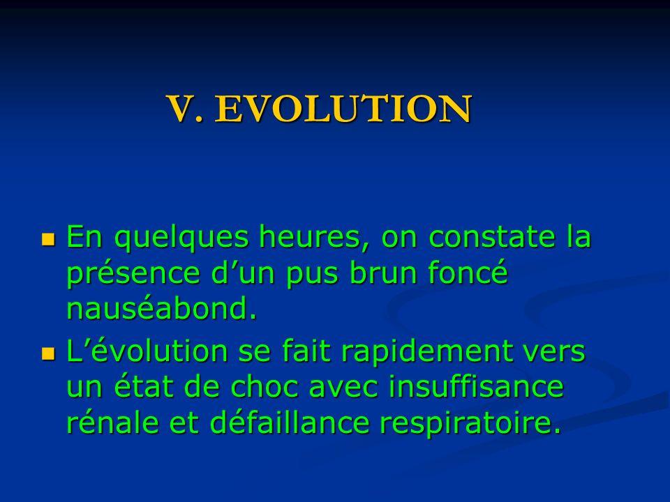 V. EVOLUTION En quelques heures, on constate la présence d'un pus brun foncé nauséabond.