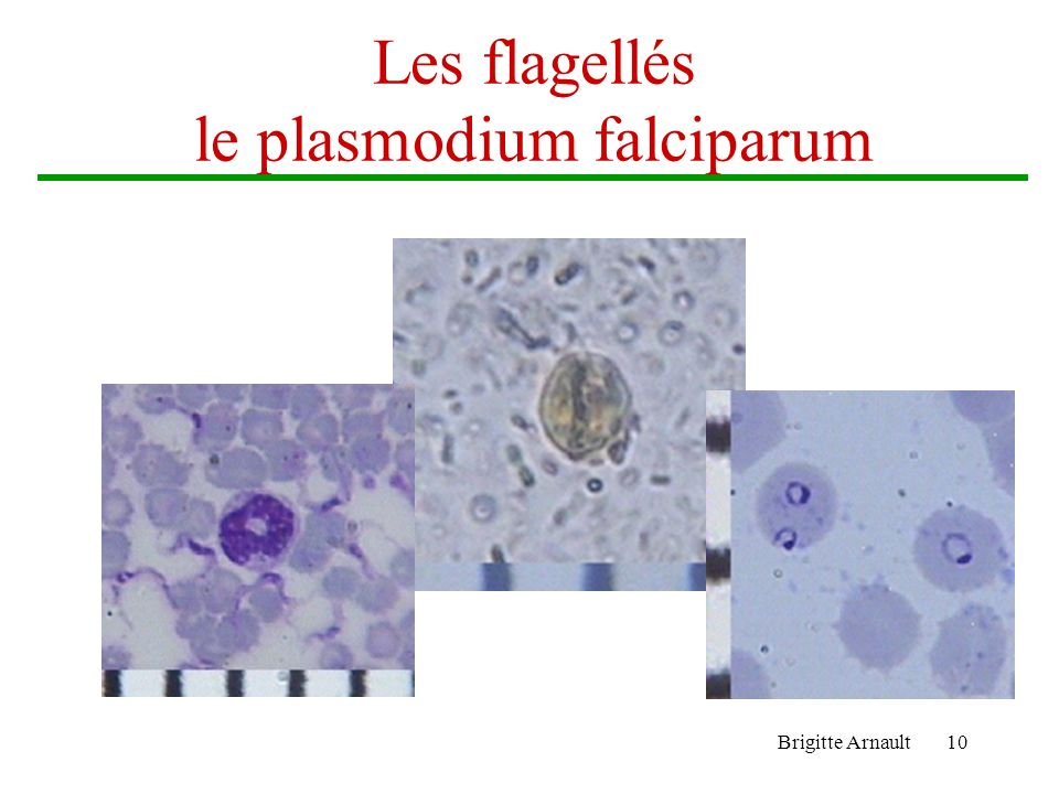 Les flagellés le plasmodium falciparum