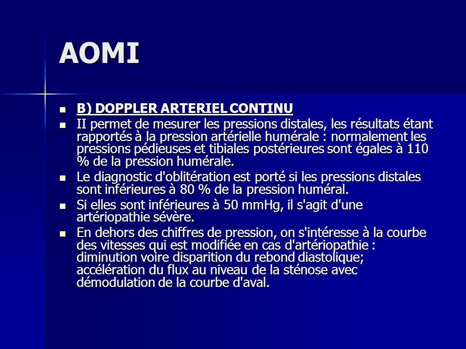 AOMI B) DOPPLER ARTERIEL CONTINU