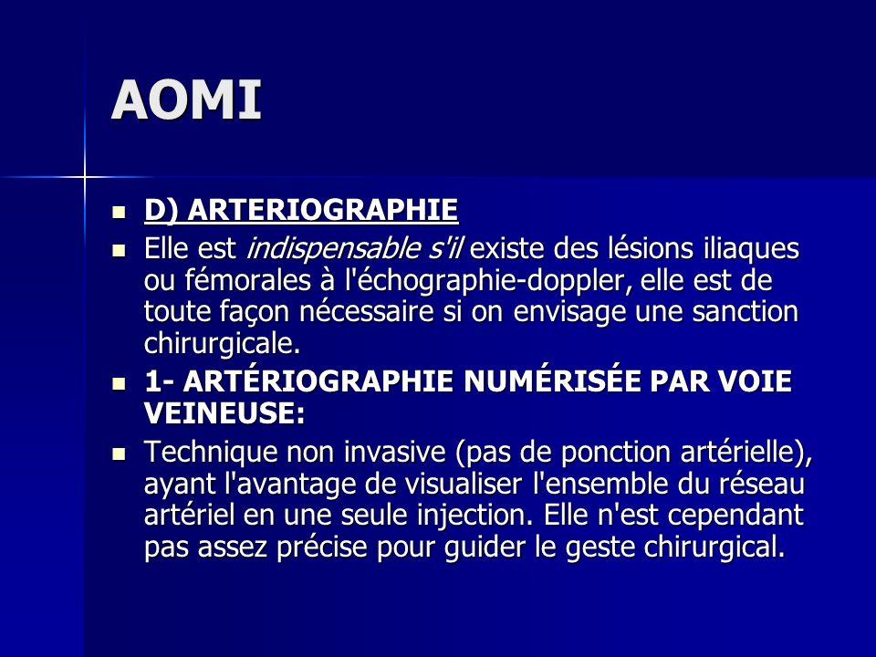 AOMI D) ARTERIOGRAPHIE