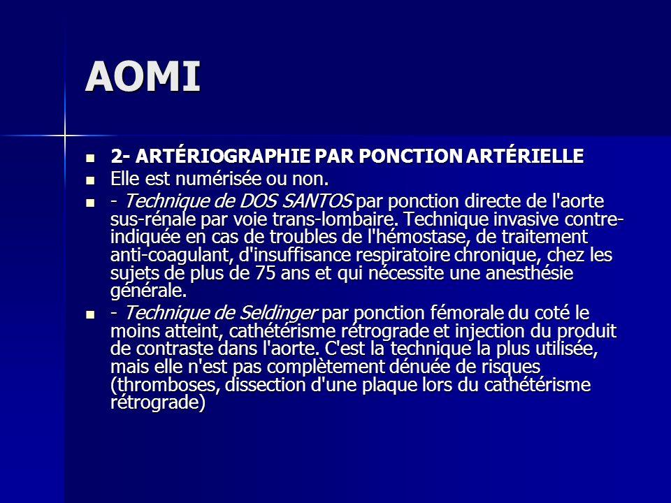 AOMI 2- ARTÉRIOGRAPHIE PAR PONCTION ARTÉRIELLE