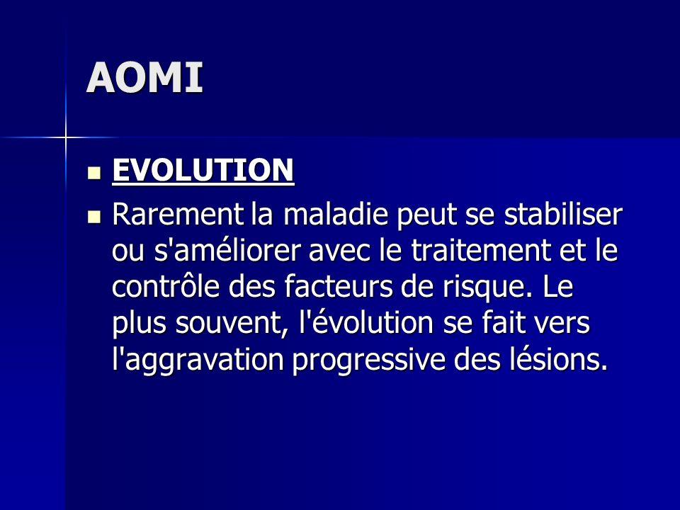 AOMI EVOLUTION.