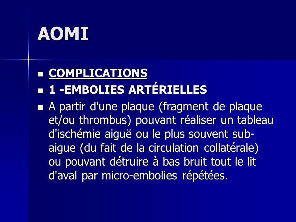 AOMI COMPLICATIONS 1 -EMBOLIES ARTÉRIELLES