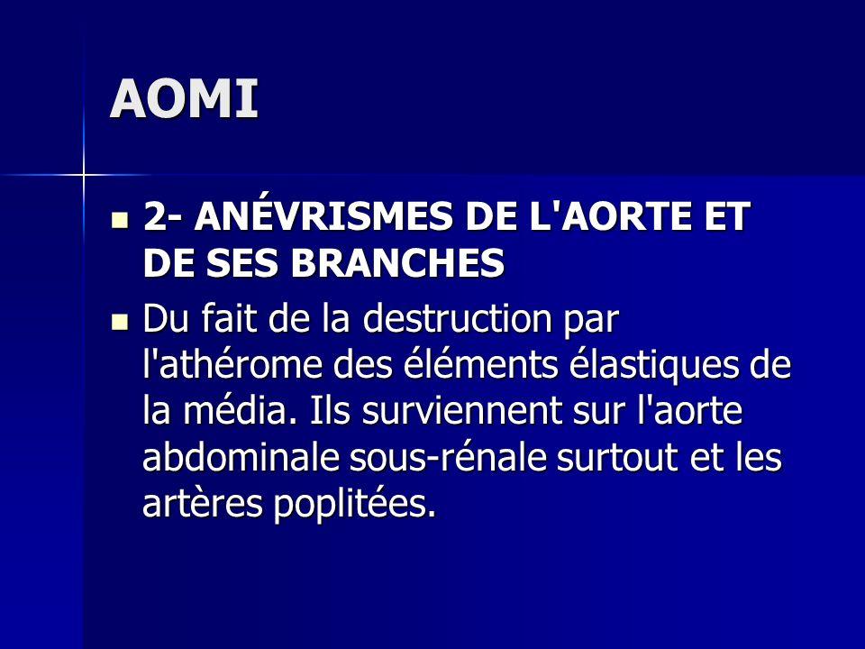 AOMI 2- ANÉVRISMES DE L AORTE ET DE SES BRANCHES
