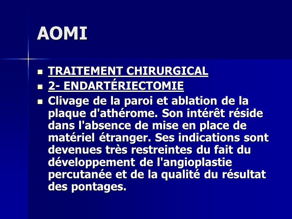 AOMI TRAITEMENT CHIRURGICAL 2- ENDARTÉRIECTOMIE