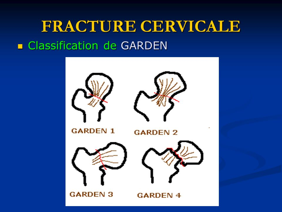 FRACTURE CERVICALE Classification de GARDEN