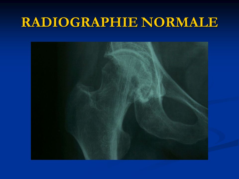 RADIOGRAPHIE NORMALE